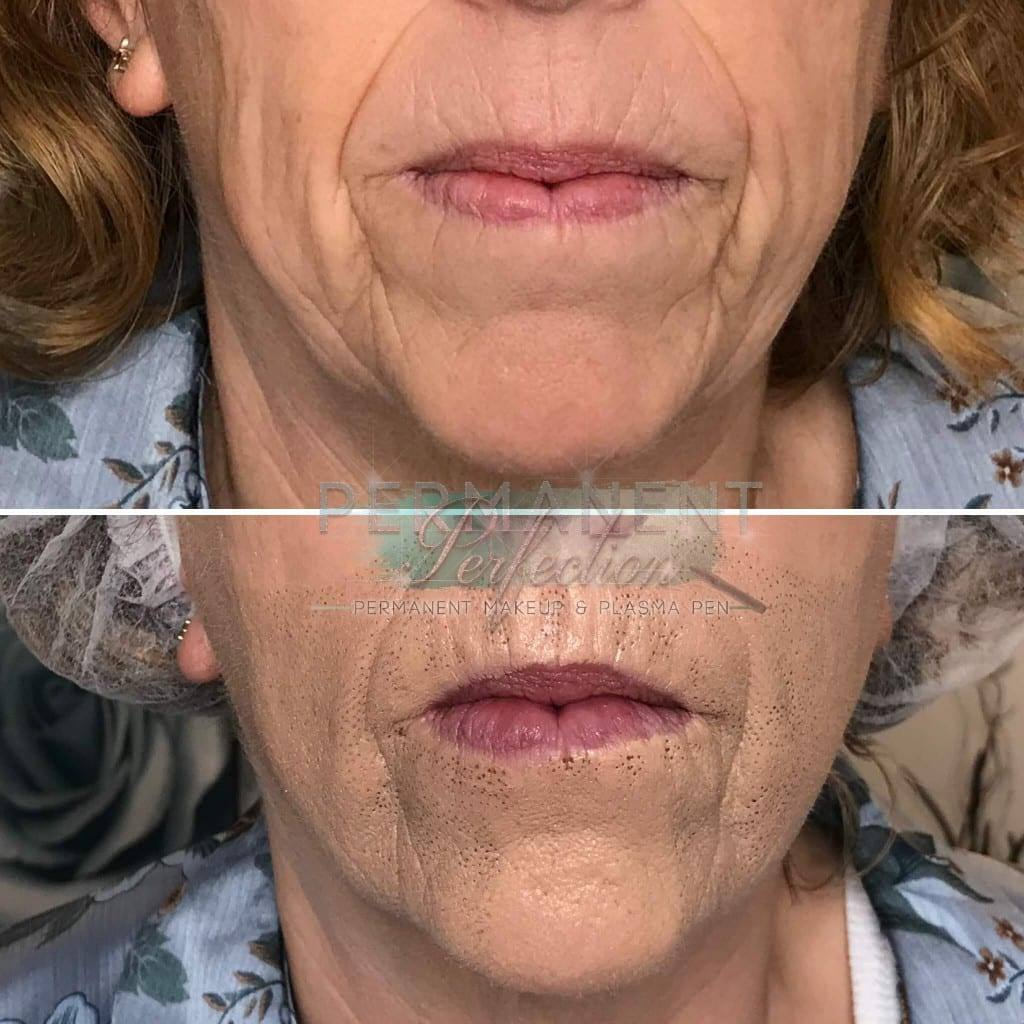 Reduce Wrinkles & Sagging Jowls